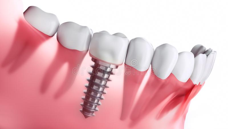 Closeup of dental implant in jaw. A row of teeth with a  crown and a metal dental implant in jaw against white backdrop royalty free illustration