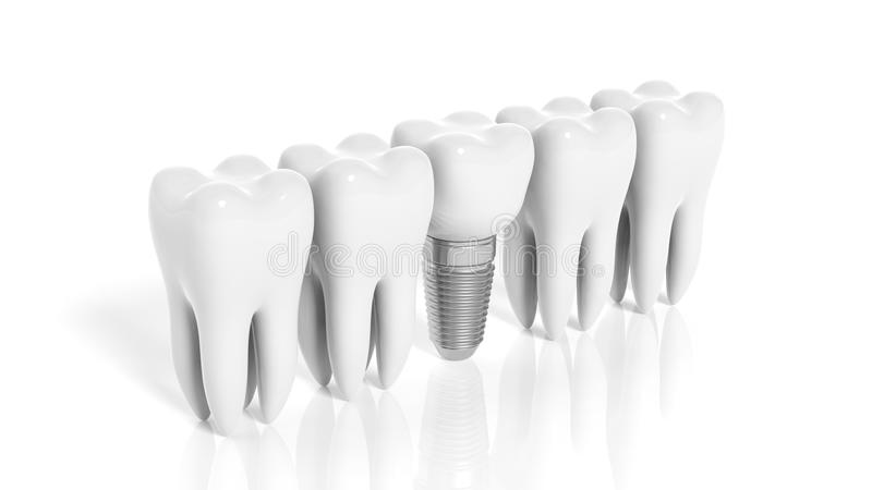 Row of teeth and dental implant. Isolated on white background royalty free illustration