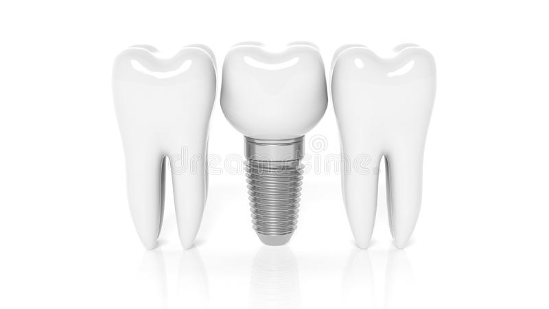 Row of teeth with dental implant. Isolated on white background vector illustration