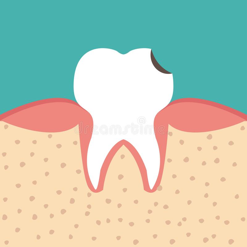 Sectional view tooth vector illustration