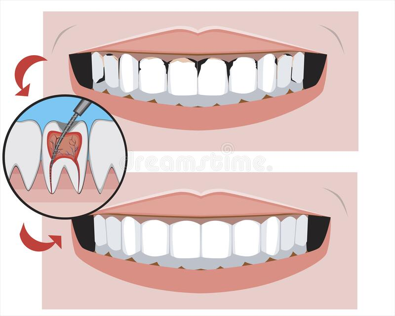 A smile with caries before and after the dental clinic, a vector stock illustration with molars as a concept for the treatment of. A smile with caries and vector illustration