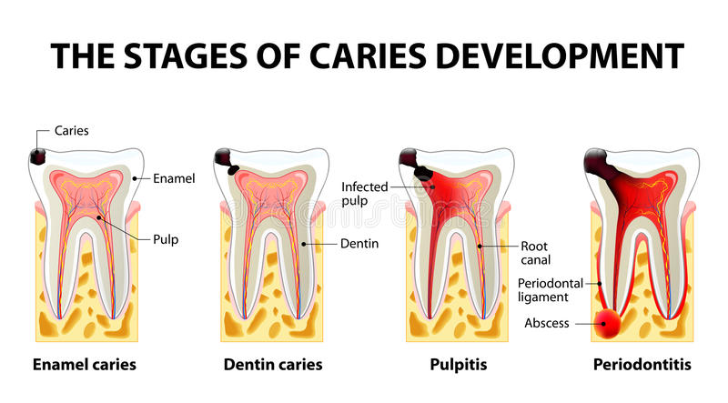 Stages of caries development royalty free illustration