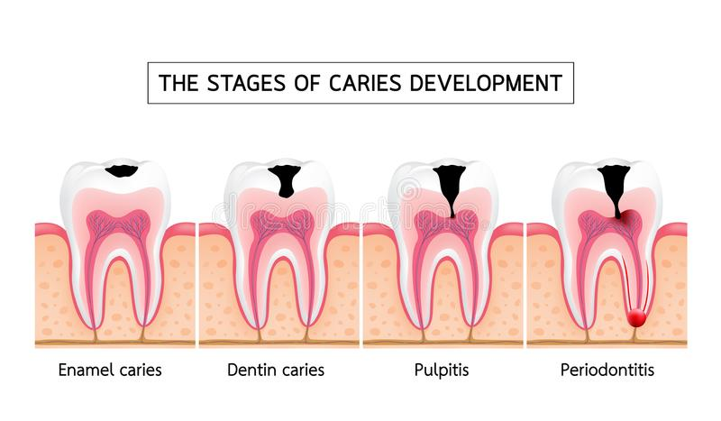 Stages of caries development. vector illustration