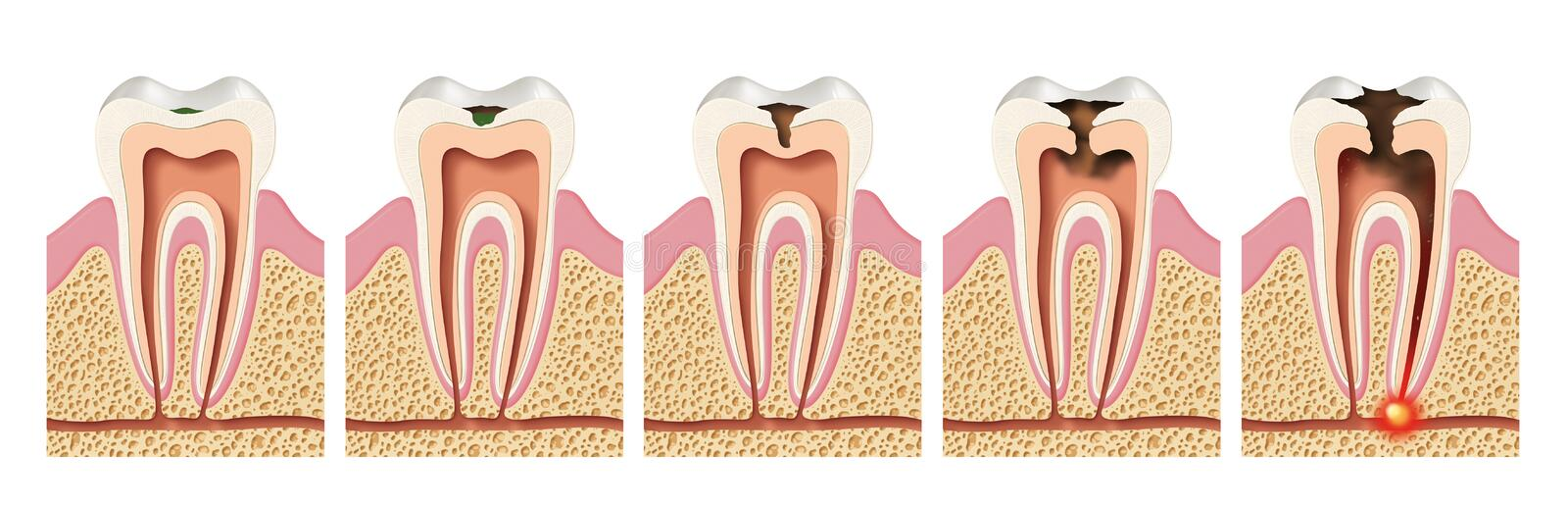 Stages of caries development. Periodontitis stock illustration