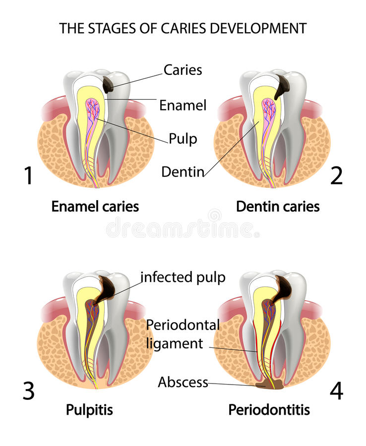 THE STAGES OF CARIES DEVELOPMENT vector illustration