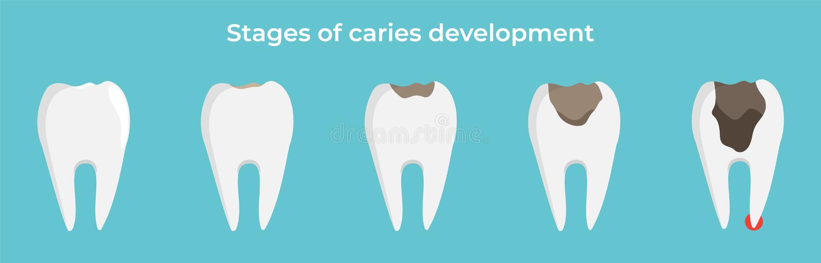 Stages of caries development, tooth dekay, dental concept, vector illustration on blue background. stock illustration