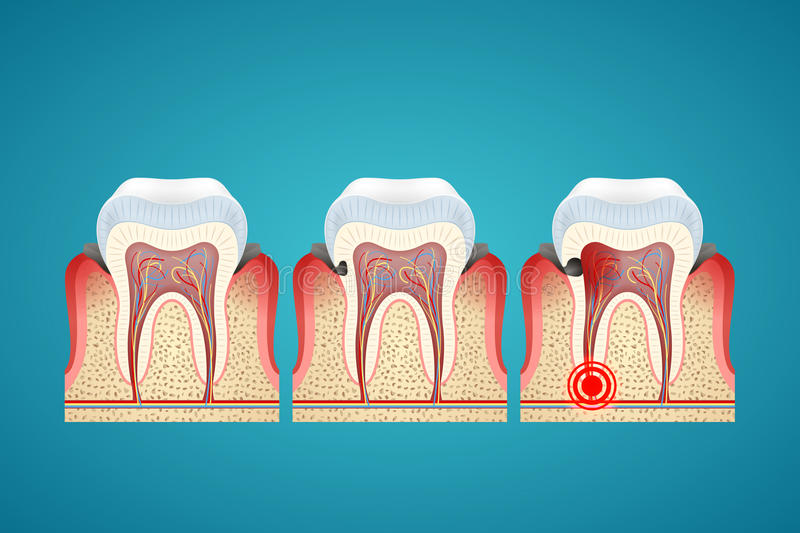 Stages progress caries on human teeth and disease gum royalty free illustration