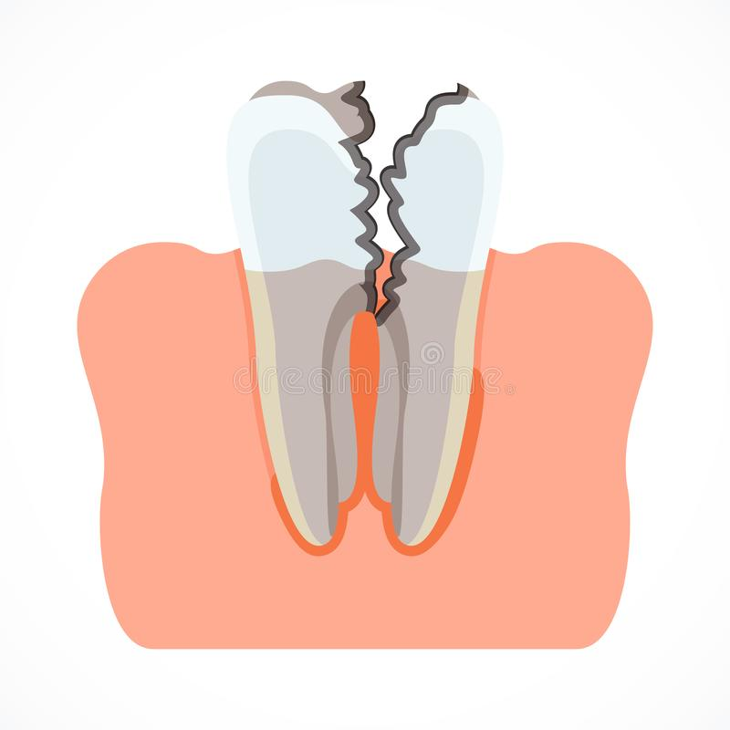 Stages of tooth decay with caries. Dentistry and oral care stock illustration