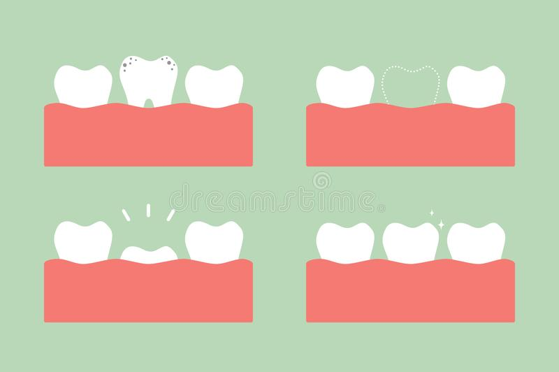 Step of caries to first teeth. Tooth cartoon vector flat style for design - step of caries to first teeth, dental care concept vector illustration