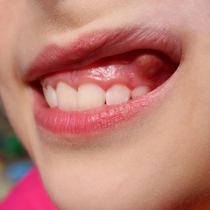 Swelling on gums the child.  stock photography