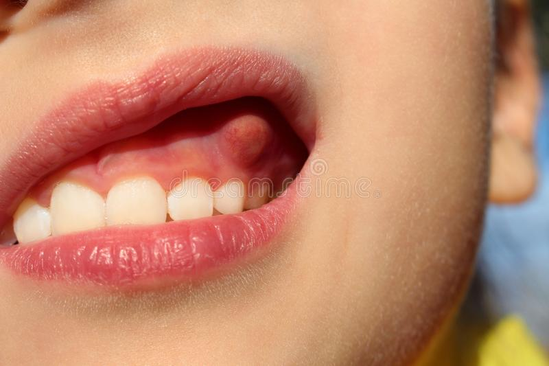 Swelling on gums child. Close up swelling on gums the child stock images