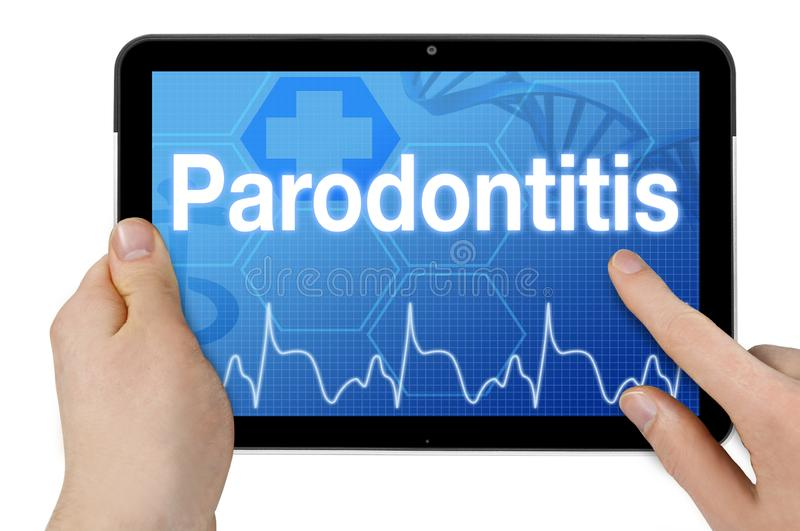 Tablet computer with the german word for periodontitis - Parodontitis. Isolated on white background stock photography