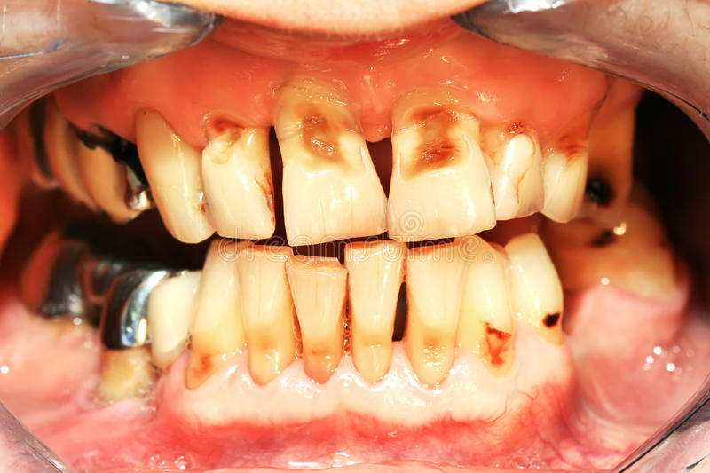 Teeth abrasion stock images