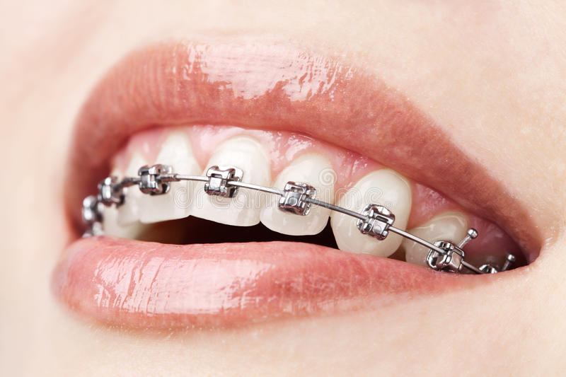 Teeth with braces royalty free stock images