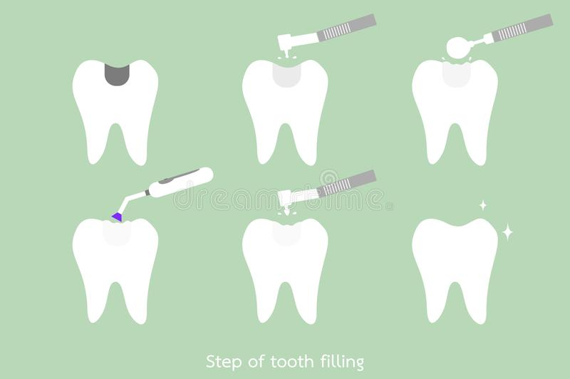 Step of caries to tooth amalgam filling with dental tools. Teeth cartoon vector flat style for design - step of caries to tooth amalgam filling with dental tools vector illustration