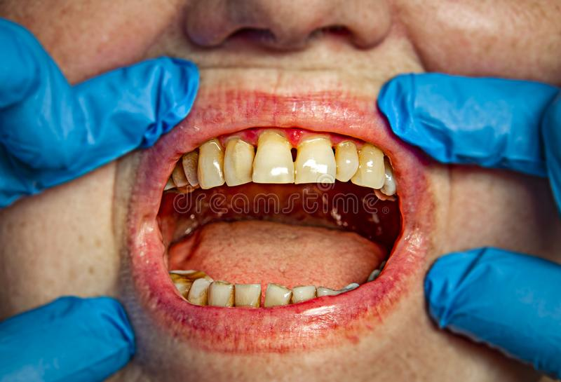 Teeth with periodontitis. Close up royalty free stock photo