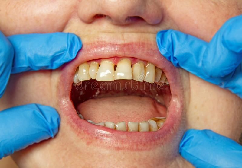 Teeth with periodontitis. Close up royalty free stock photos