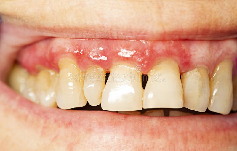 Teeth with periodontitis. Close up stock photography