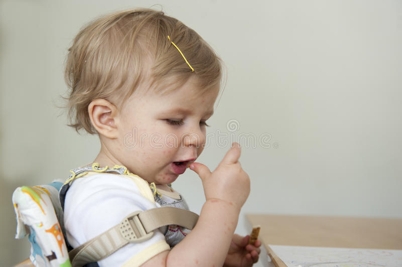 Toddler with hand , foot and mouth disease. Indoors stock image
