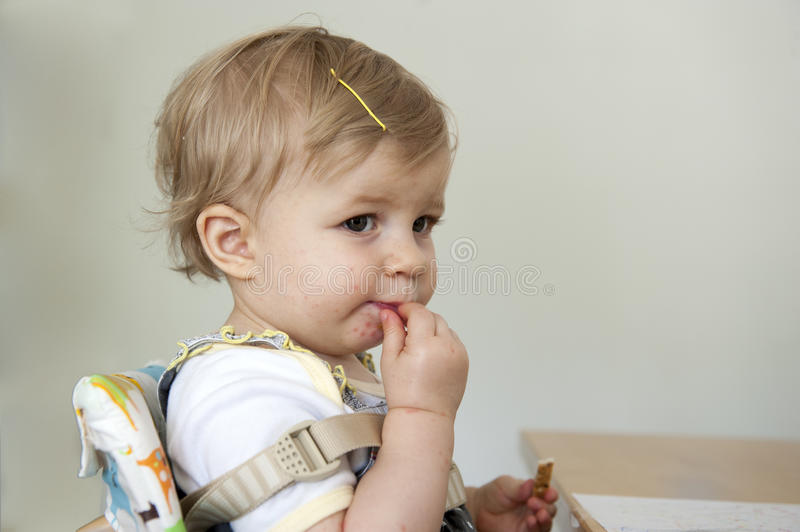 Toddler with hand , foot and mouth disease. Indoors royalty free stock image