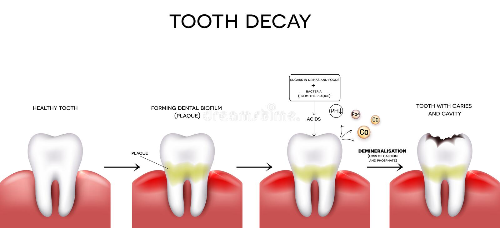 Tooth caries and cavity royalty free illustration