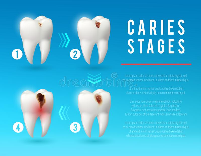 Tooth decay 3d poster of dental caries development. Tooth decay 3d vector poster. Teeth on different stages of dental caries development. Enamel and dentin decay royalty free illustration