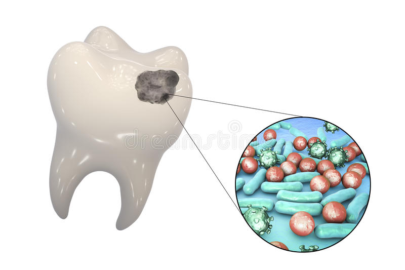 Tooth with dental caries. And close-up view of microbes which cause caries, 3D illustration royalty free illustration
