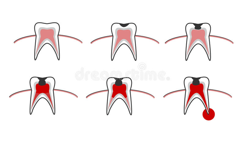 Vector illustration of the stages of caries on the teeth. Dental chart stock illustration
