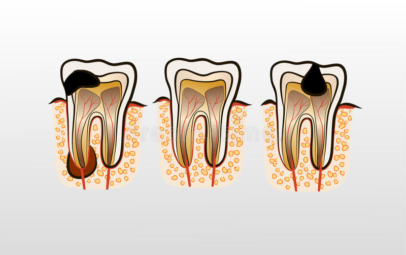 Vector illustration of tooth Decay Caries. Vector illustration of tooth decay. Four stages of dental caries vector illustration