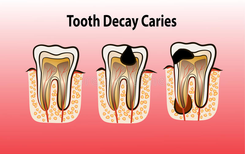 Vector illustration of tooth Decay Caries. Vector illustration of tooth decay. Four stages of dental caries stock illustration
