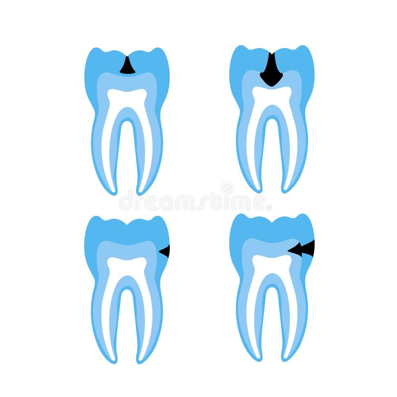 Vector isolated illustration of tooth royalty free illustration
