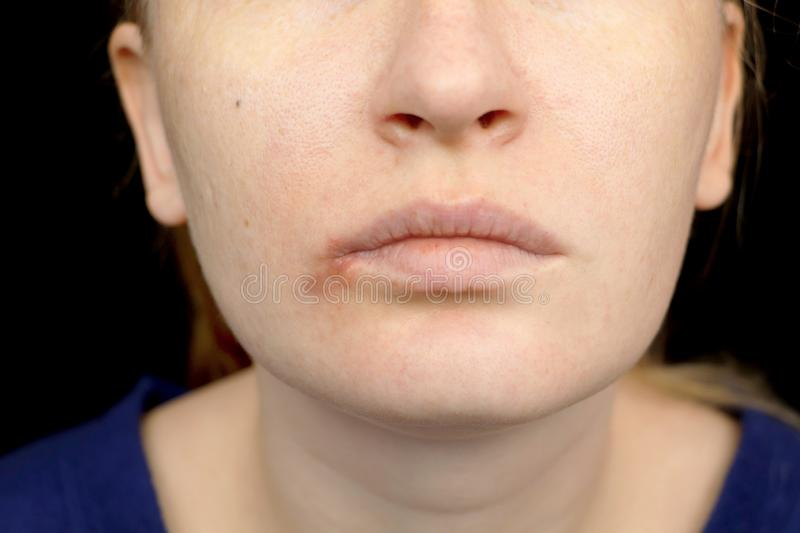 Herpes on the lips: a woman with a cold and the herpes virus is examined by a dermatologist and infectious disease specialist royalty free stock images