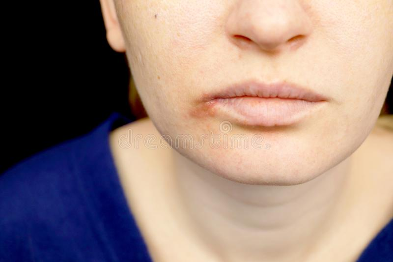 Herpes on the lips: a woman with a cold and the herpes is examined by a dermatologist and infectious disease specialist stock photos