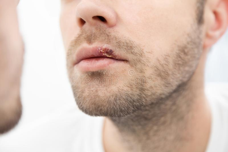 Young man suffering from herpes on his mouth royalty free stock photography