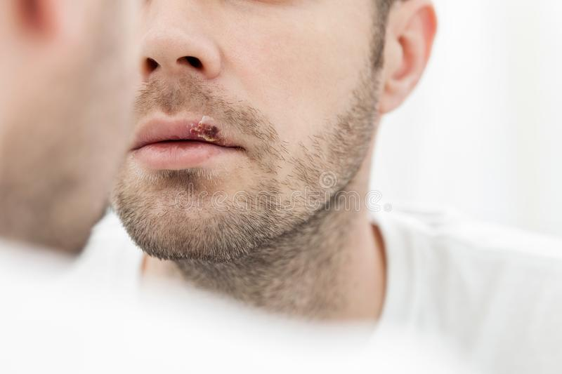 Young man suffering from herpes on his mouth royalty free stock photos
