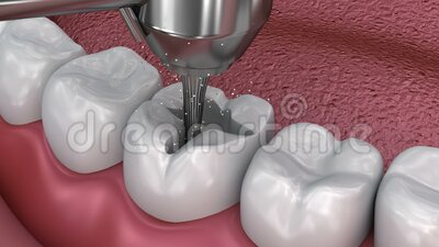 Caries removal, Dental fissure fillings,. Medically accurate 3D illustration stock illustration