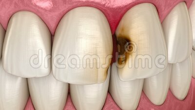 Central incisor teeth damaged by caries. Medically accurate tooth animation. Central incisor teeth damaged by caries. Medically accurate tooth 3D animation royalty free illustration