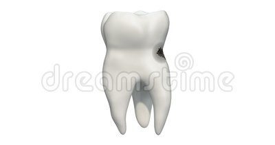 Tooth with caries, 3d animation. 3D rendering. Isolated on white background stock illustration