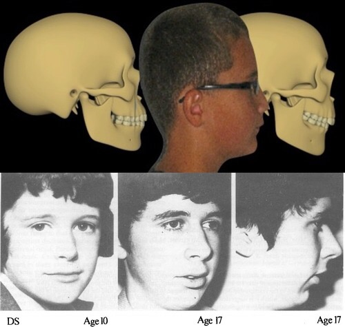cranial dystrophy