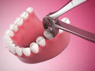 Обильное слюноотделение после удаления зуба